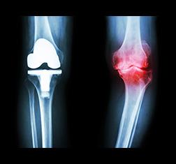 Osteoarthritis  - X-ray image