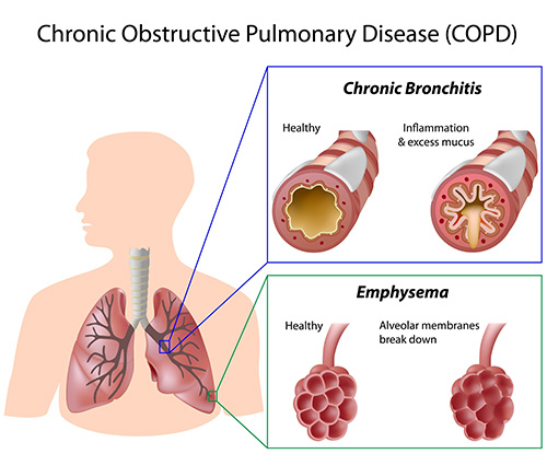 COPD - Chronic Bronchitis and Emphysema picture